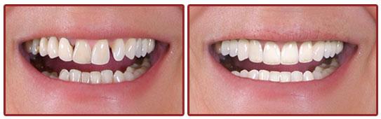 Thanjai dental -Dental Tourism in thanjavur,dental